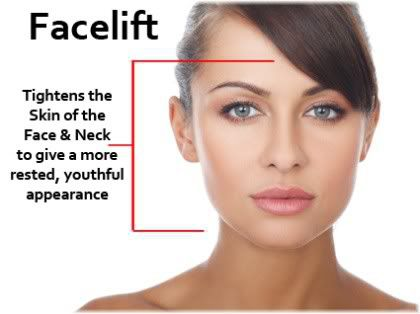 facelift benefits