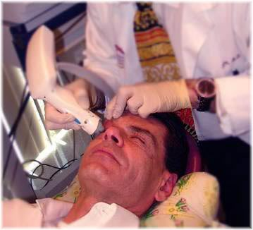 Thermage male treatment face