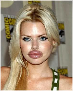woman with large lips