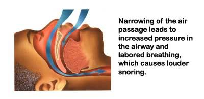 snoring airways