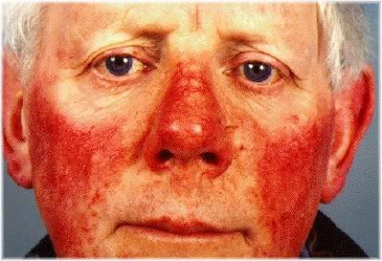 stage 3 rosacea