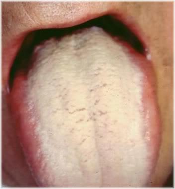 Bad Breath Causes and Treatments | EruptingMind