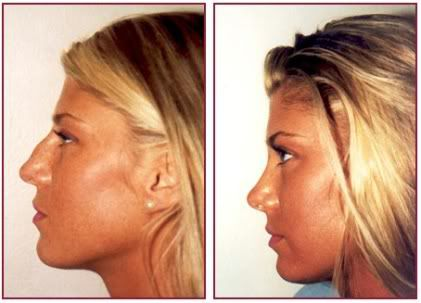 before after rhinoplasty female