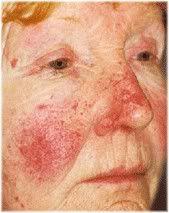 vascular rosacea
