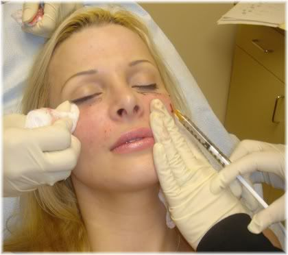 woman facial injection